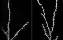 Neuronas niños con autismo